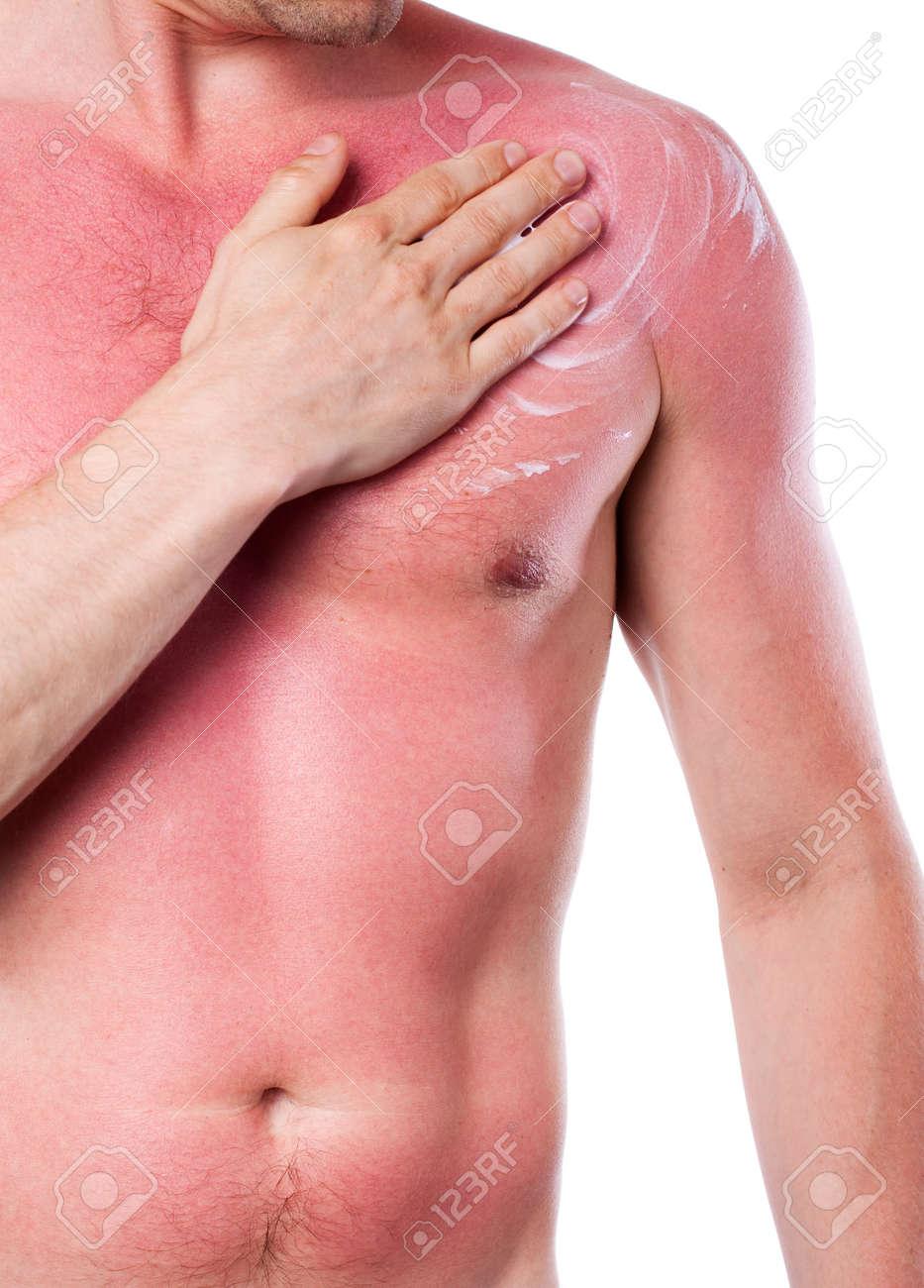 Man with a sunburn isolated on white background Stock Photo - 19973603