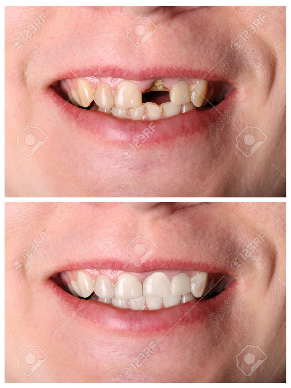 Incisive tooth restoration before and after treatment - 35891605