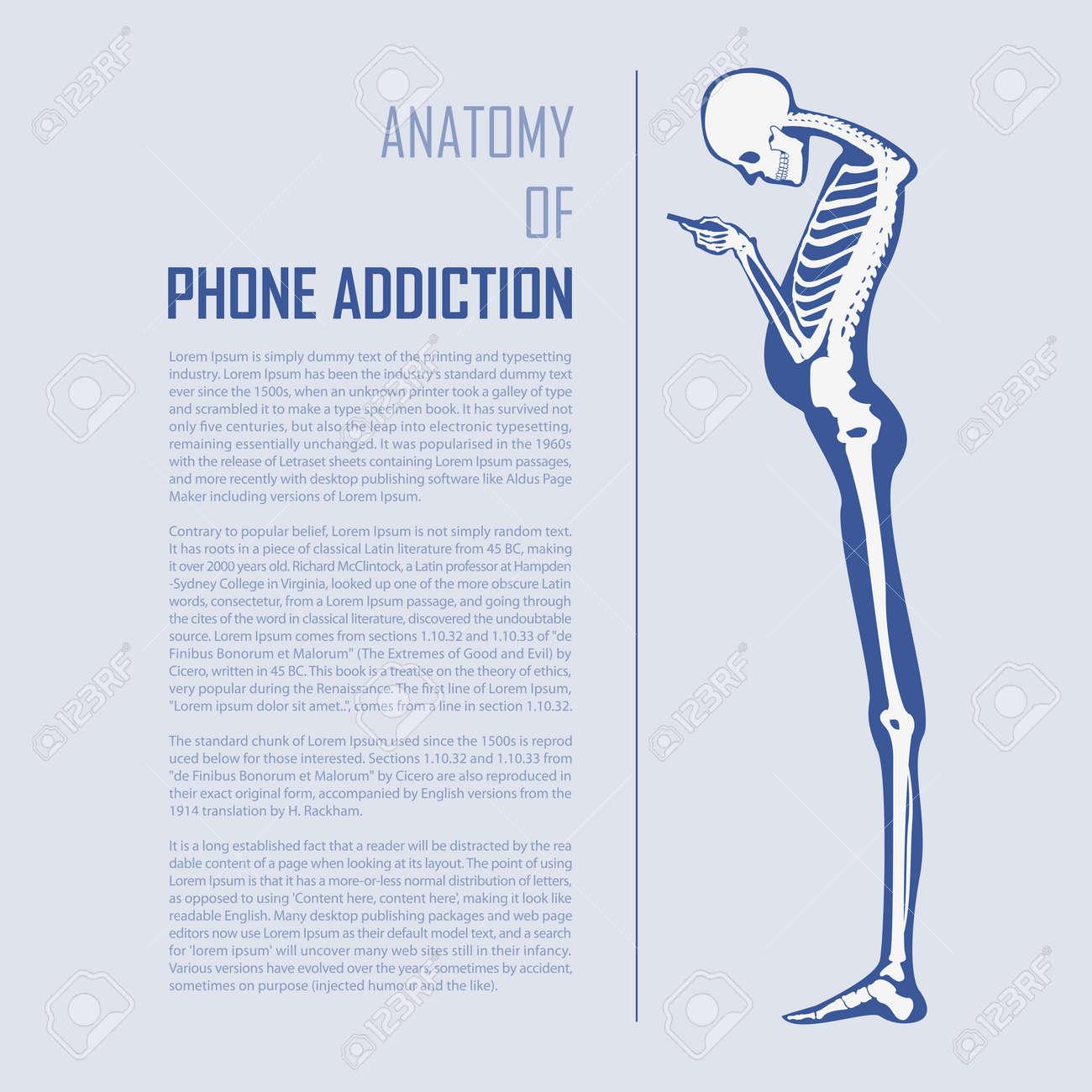 Smartphone Addiction Infographics in flat design. Human bone anatomy. Vector Illustration - 72921325