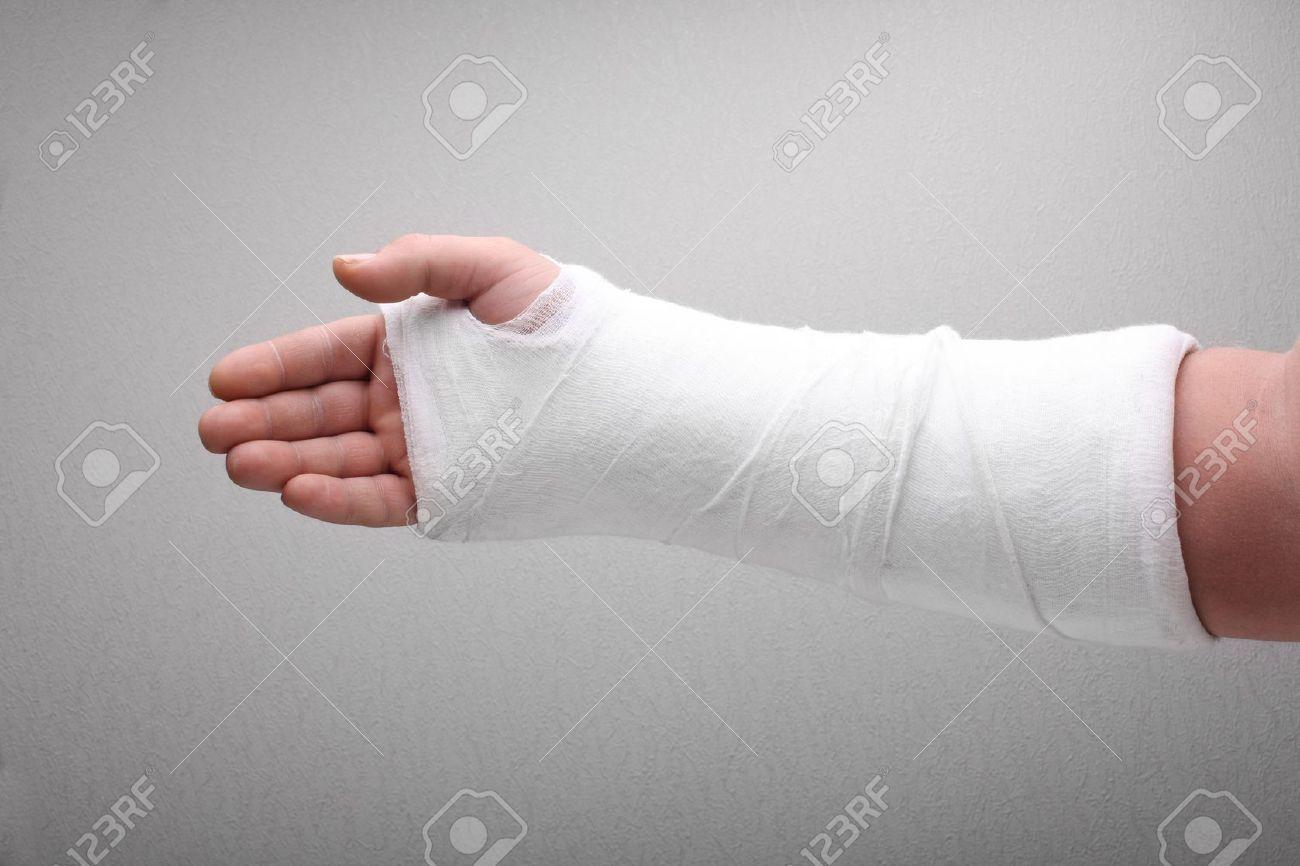 Фото рука з гіпсом 8 фотография