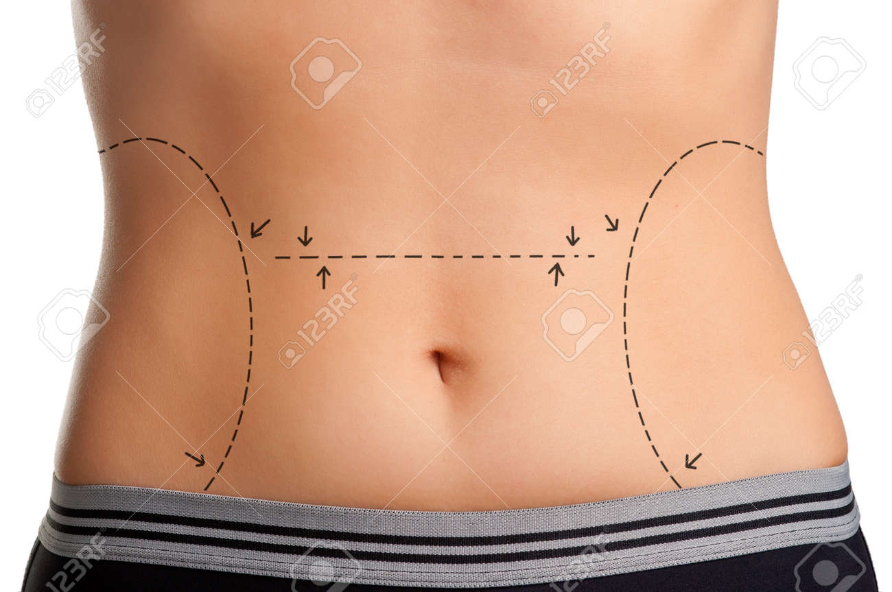 Tummy marked for plastic surgery Stock Photo - 15941575