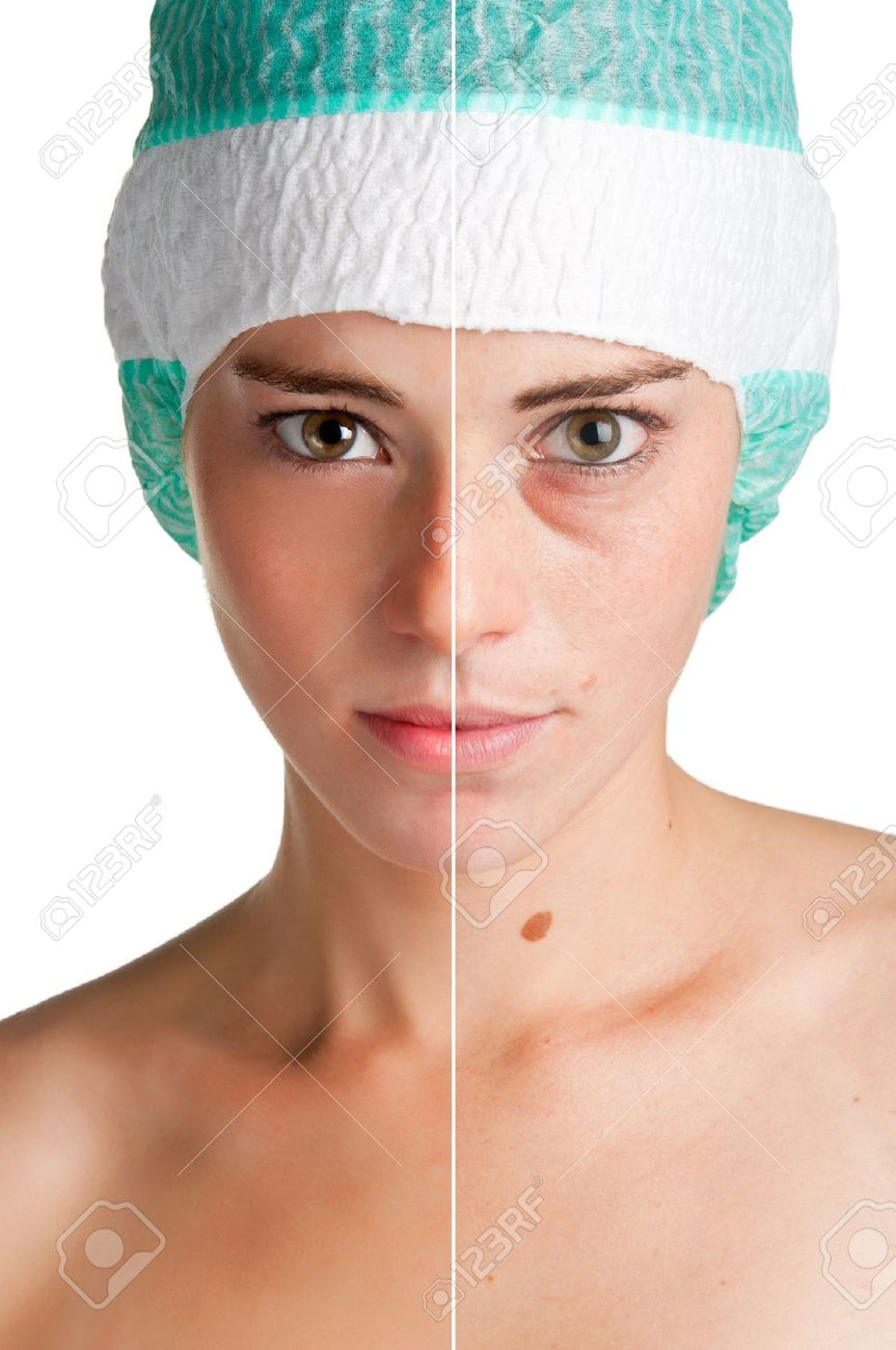 Before and after portrait of a young woman that undergone a skin treatment Stock Photo - 16014484