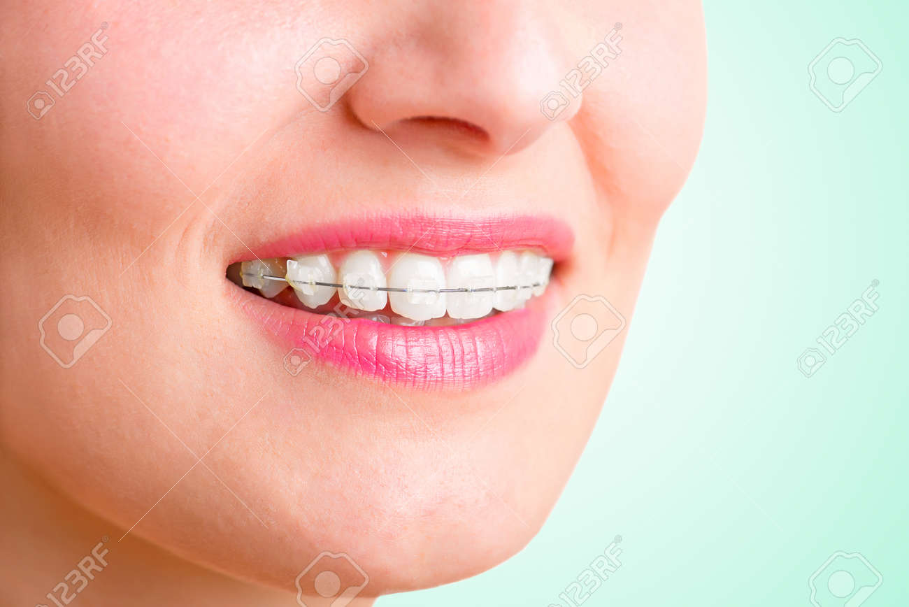 Closeup of a mouth with braces on teeth and the tongue out, isolated in green Stock Photo - 30529444