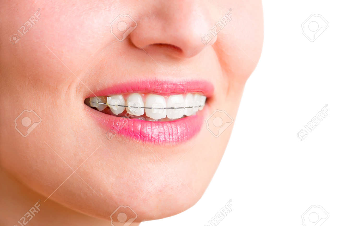 Closeup of a mouth with braces on teeth and the tongue out, isolated in green Stock Photo - 30529445