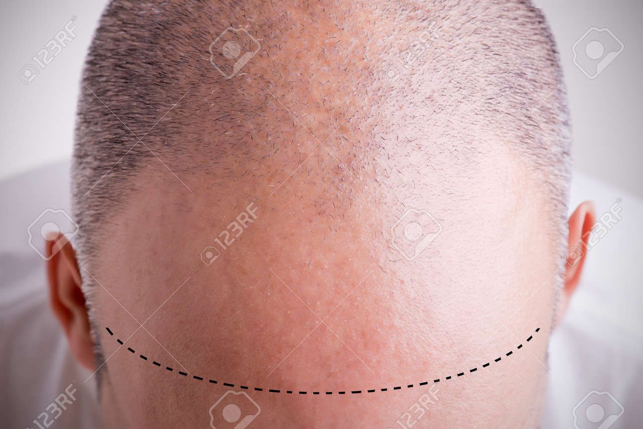 Top view of a men's head with a receding hair line with a marked hairline Stock Photo - 35229377