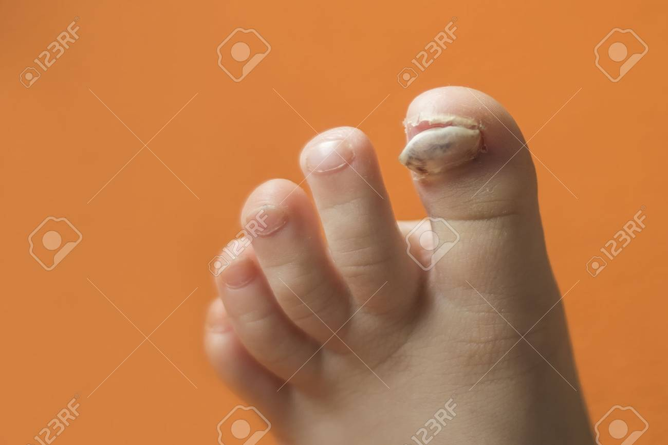 Foot Of A Child With A Broken Blue Finger Without A Nail Plate ...