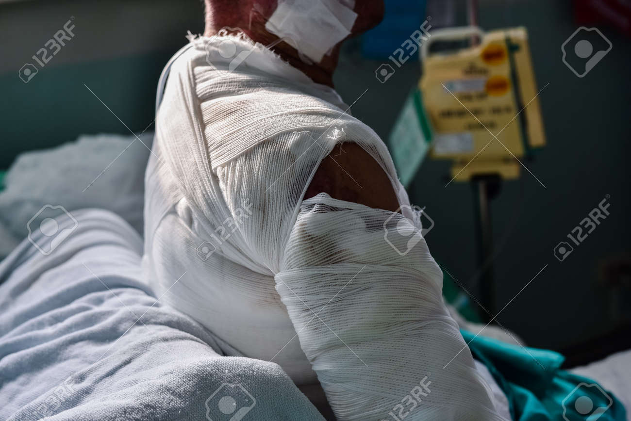 Patient with burns in the hospital. - 105855397