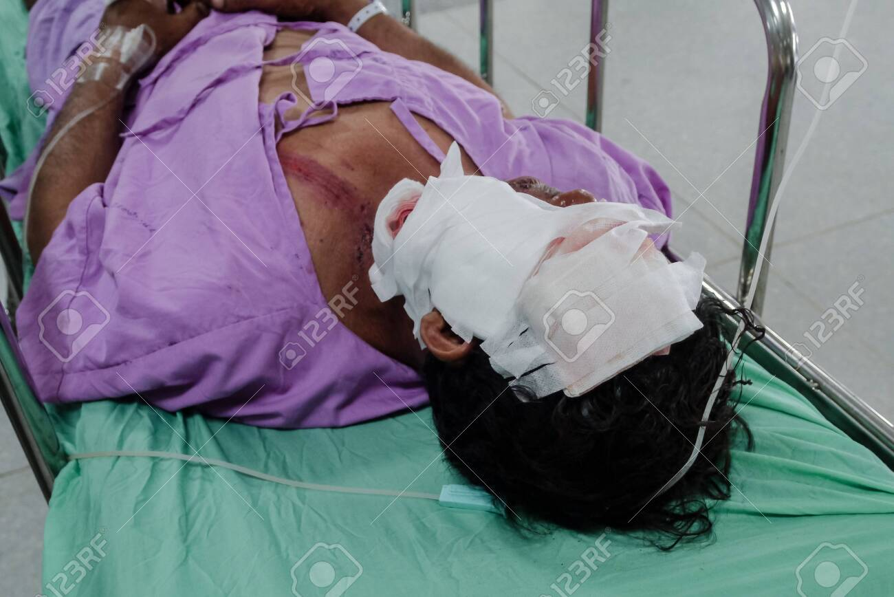 Patients with severe wound on face. - 127826692