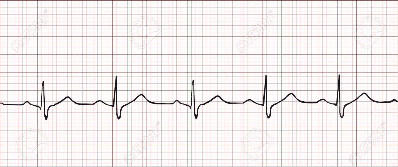 Normal electronic cardiogram vector illustration Stock Vector - 3821681