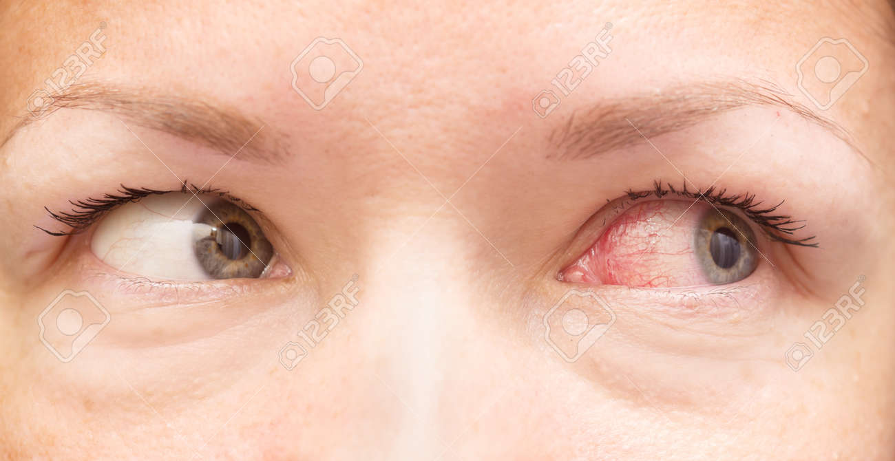 close up of healthy and irritated red eyes Standard-Bild - 47606974