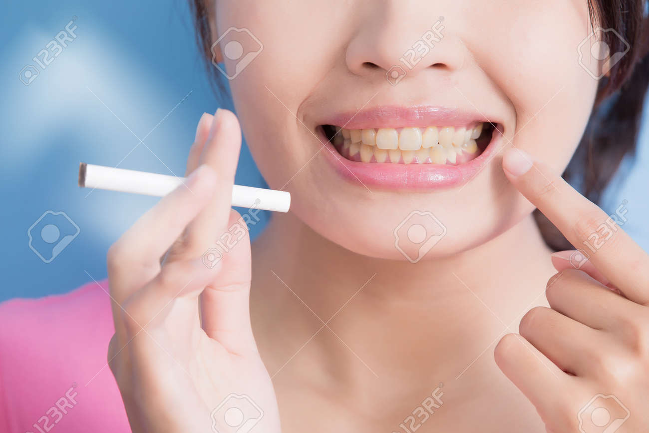 Woman holding cigarettes with yellow teeth isolated on blue background, asian Standard-Bild - 64961185