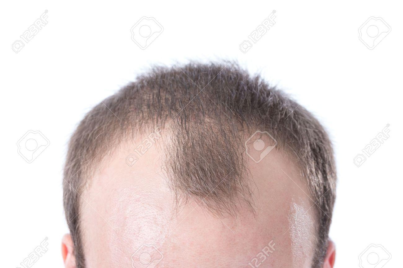 Залысины на лбу у мужчин прически