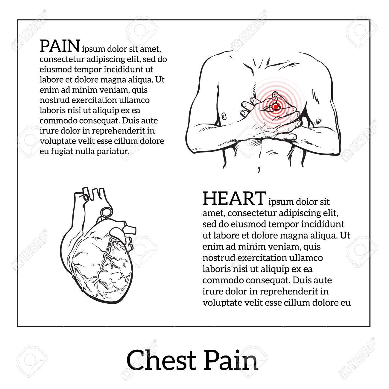 Información Sobre El Dolor De Corazón, Dolor En El Pecho En Los ...