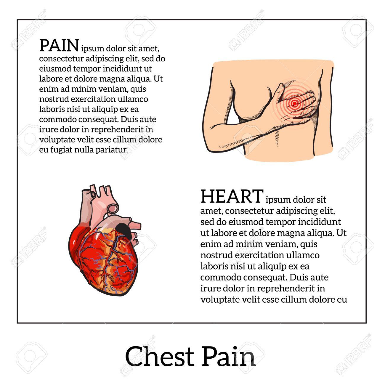 Información Sobre El Dolor De Corazón, Dolor En El Pecho En Las ...