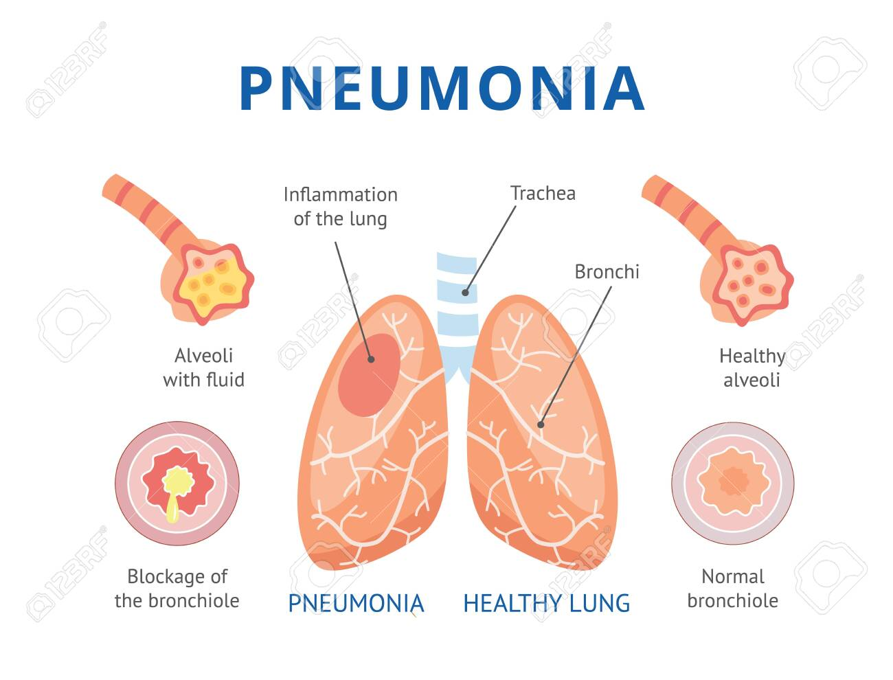 Medical infographics of human pneumonia. The lungs are healthy and diseased lungs with pneumonia. Isolated vector flat illustration. - 128947804
