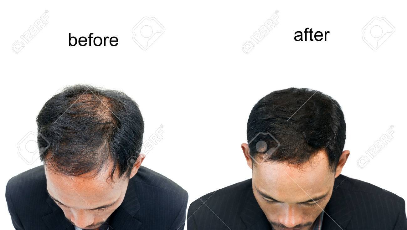 before and after bald head of a man on white background. - 77034318