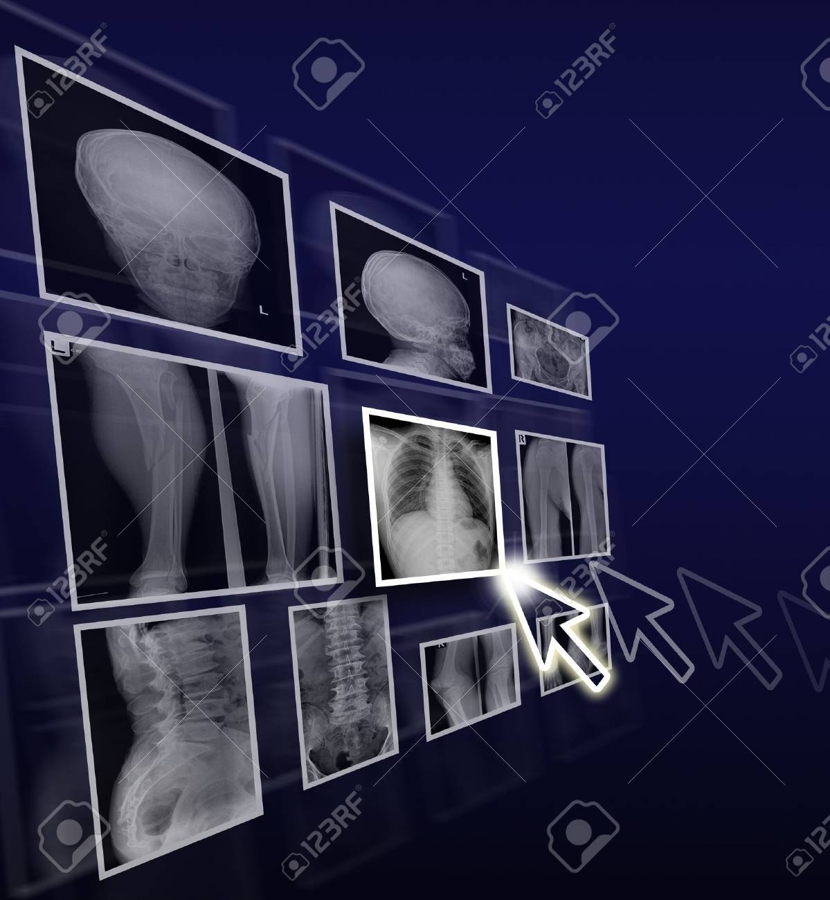 Health care concept by x ray films on gradient background. Stock Photo - 12511759