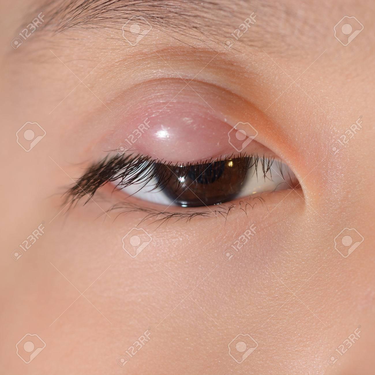 dolor en el parpado superior del ojo derecho