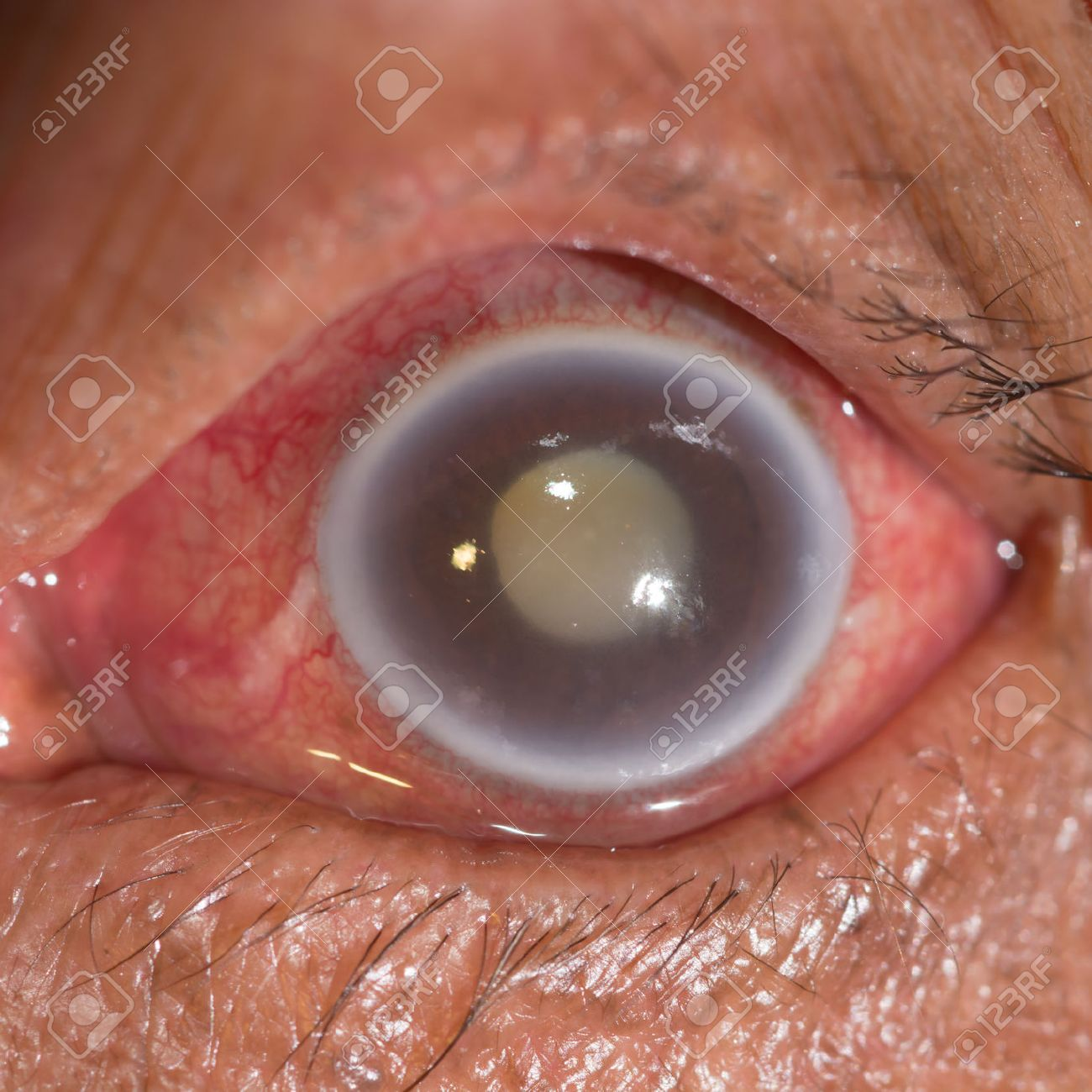 Close Up Of The Acute Angle Closure Glaucoma During Eye ...