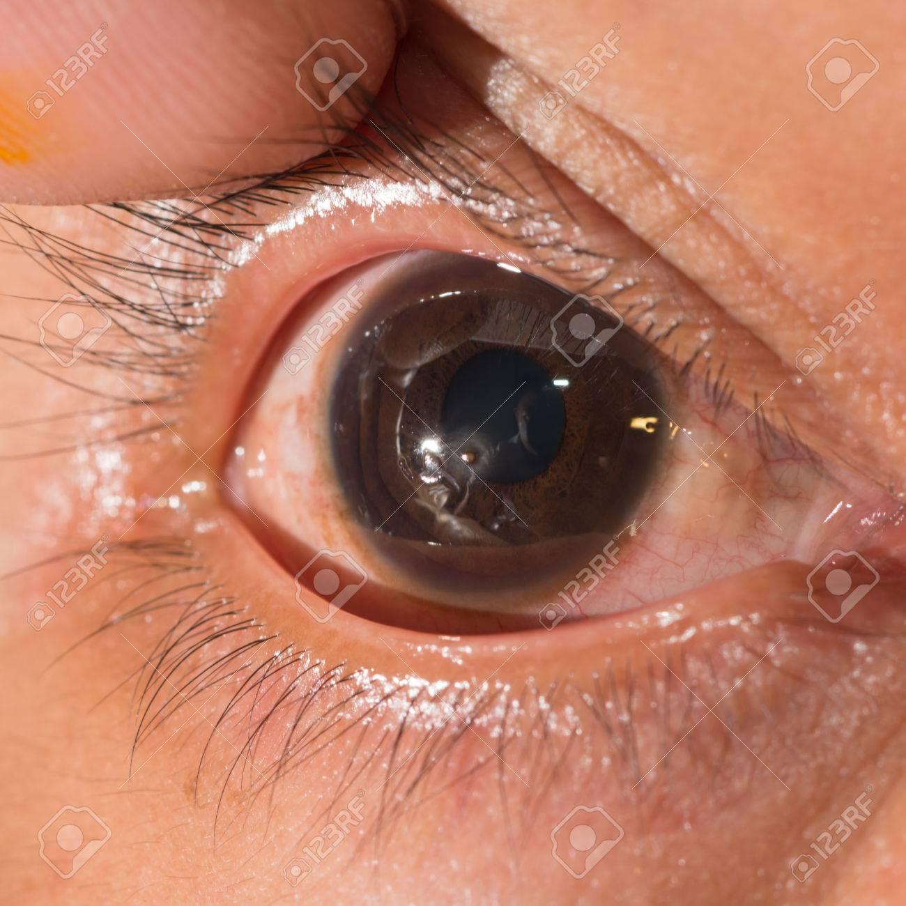 Close up du corps étranger cornéen métallique retenu lors de l'examen de  l'oeil.