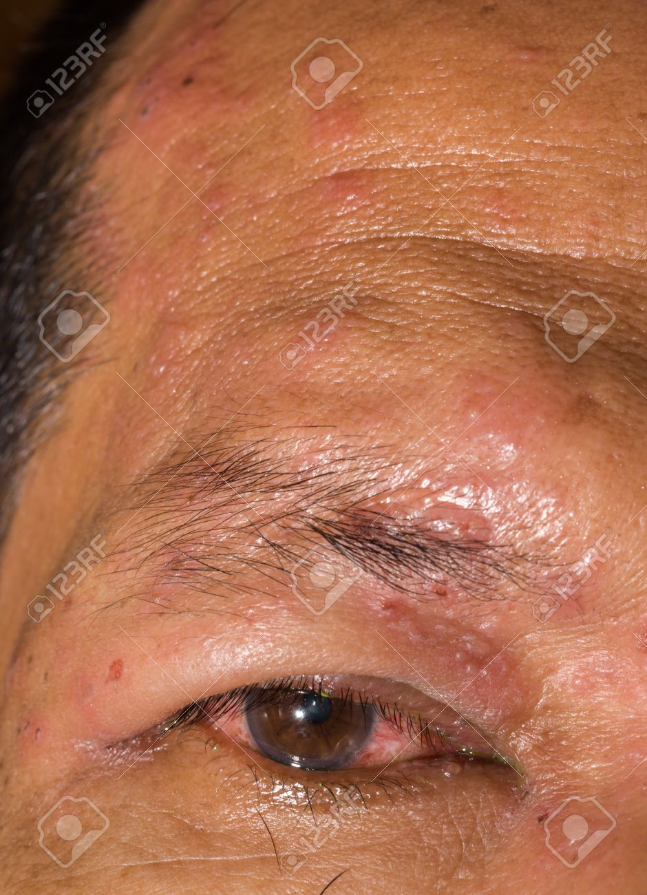 Close Up Of The Herpes Zoster Ophthalmicus During Eye Examination Stock Photo Picture And Royalty Free Image Image 44342229