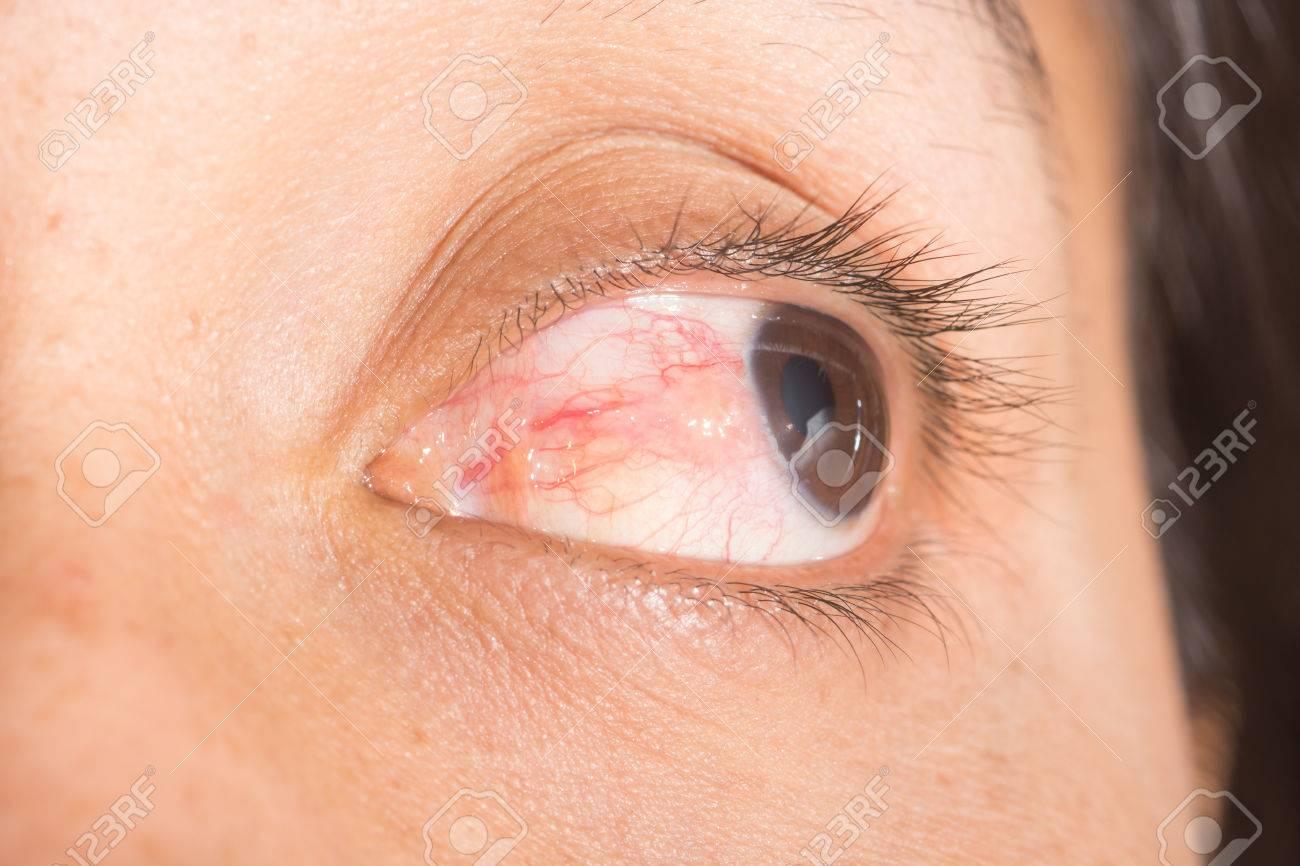 tiene infección ocular