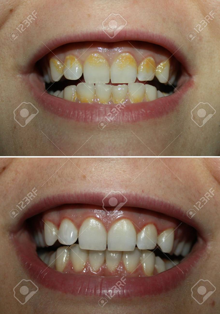 Real before and after tartar plaque removal, yellow tartar dental
