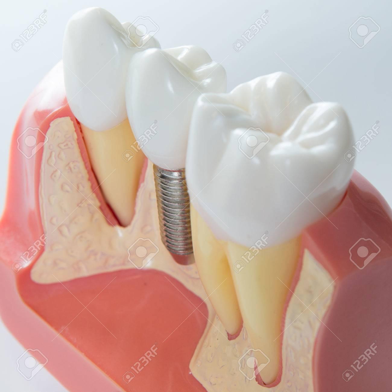 Close up of a Dental  implant model. Selective focus. Standard-Bild - 35280970