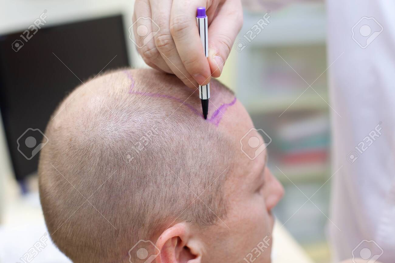 Baldness treatment. Patient suffering from hair loss in consultation with a doctor. Preparation for hair transplant surgery. The line marking the growth of hair. The patient controls the marking in the mirror. Head close-up. - 124791797