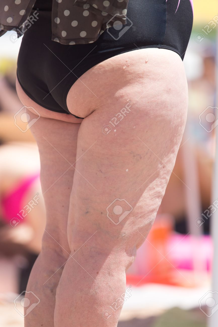 Fat Ass Women On The Beach Stock Photo Picture And Royalty Free