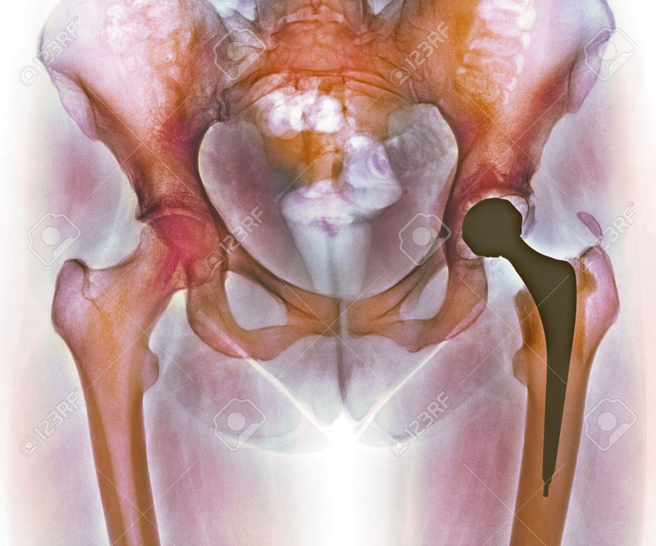 Loosened Hip Replacement.Coloured X-ray Of A Loosened Total Hip ...