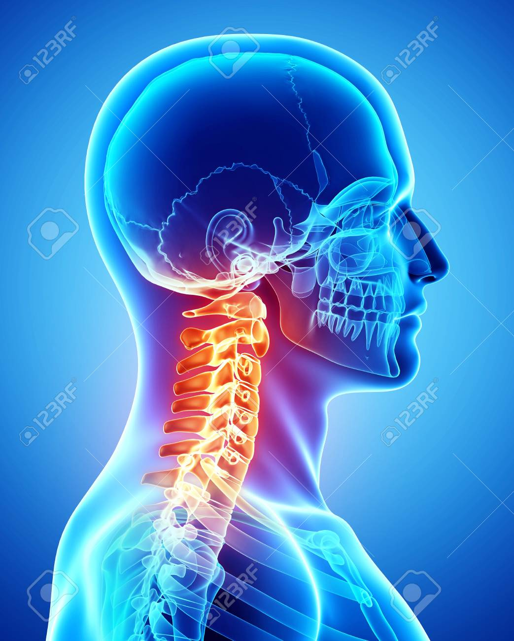 Neck Paincomputer Artwork Stock Photo Picture And Royalty Free