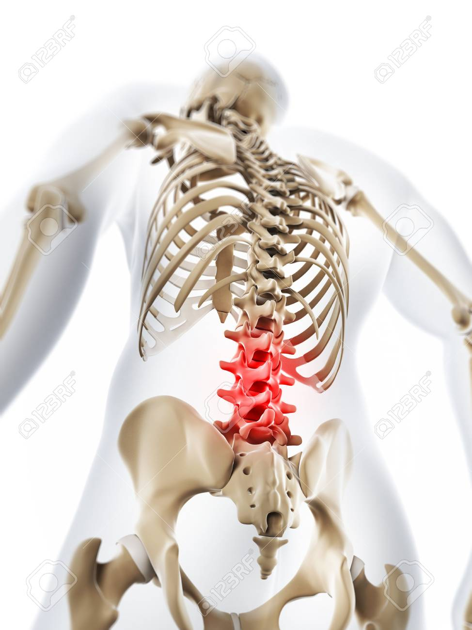 Lower Back Painconceptual Computer Artwork Stock Photo Picture And