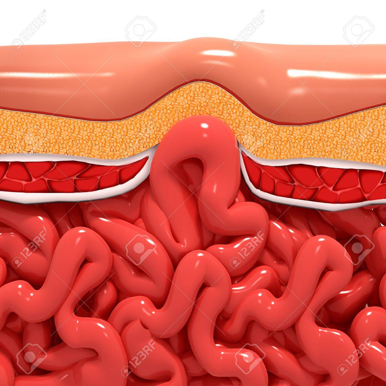 Ventral Hernia,artwork Stock Photo, Picture And Royalty Free Image ...