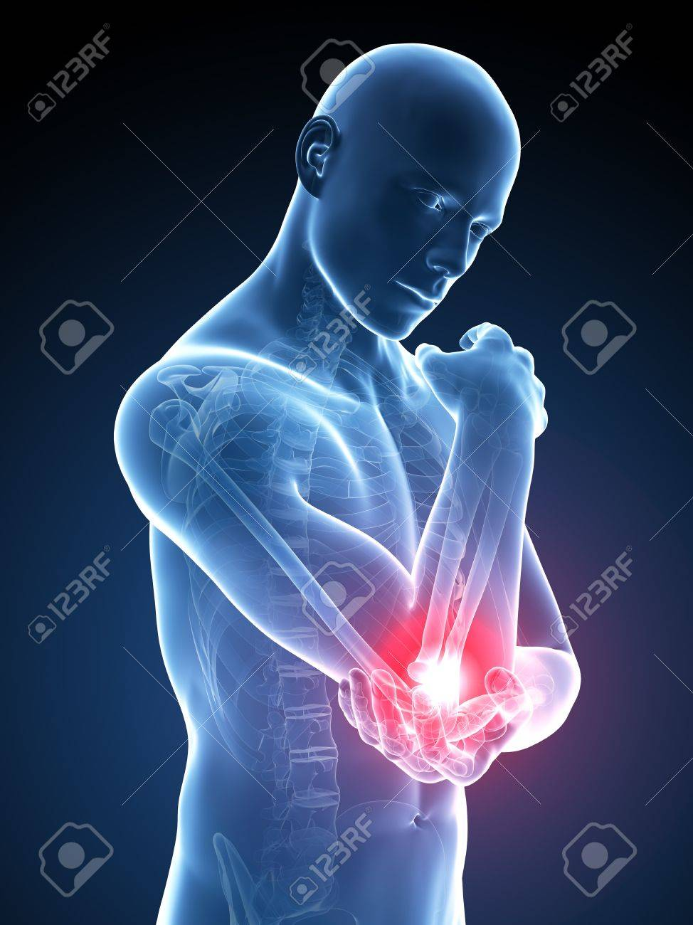 Human Elbow Pain, Illustration Stock Photo, Picture And Royalty Free ...