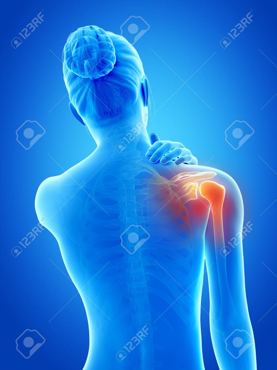 Human Shoulder Pain, Illustration Stock Photo, Picture And Royalty ...