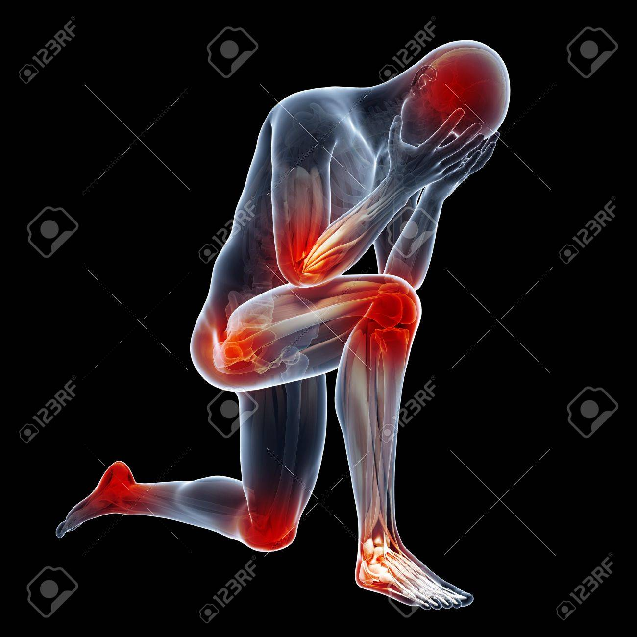 Human joint pain illustration stock photo picture and royalty free human joint pain illustration stock photo 76281504 ccuart Choice Image