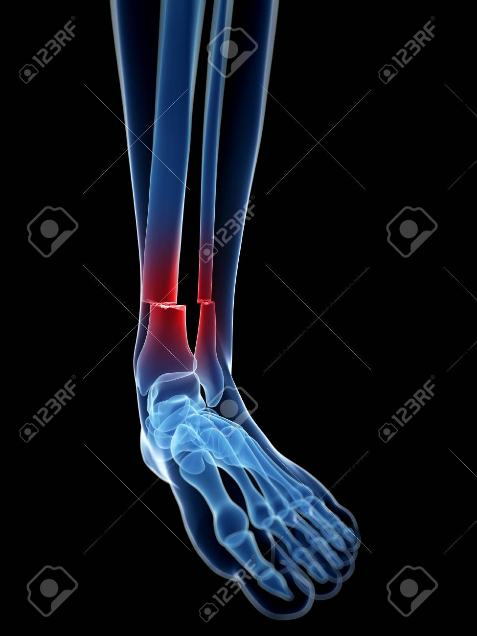 Broken Lower Leg Bones Illustration Stock Photo Picture And