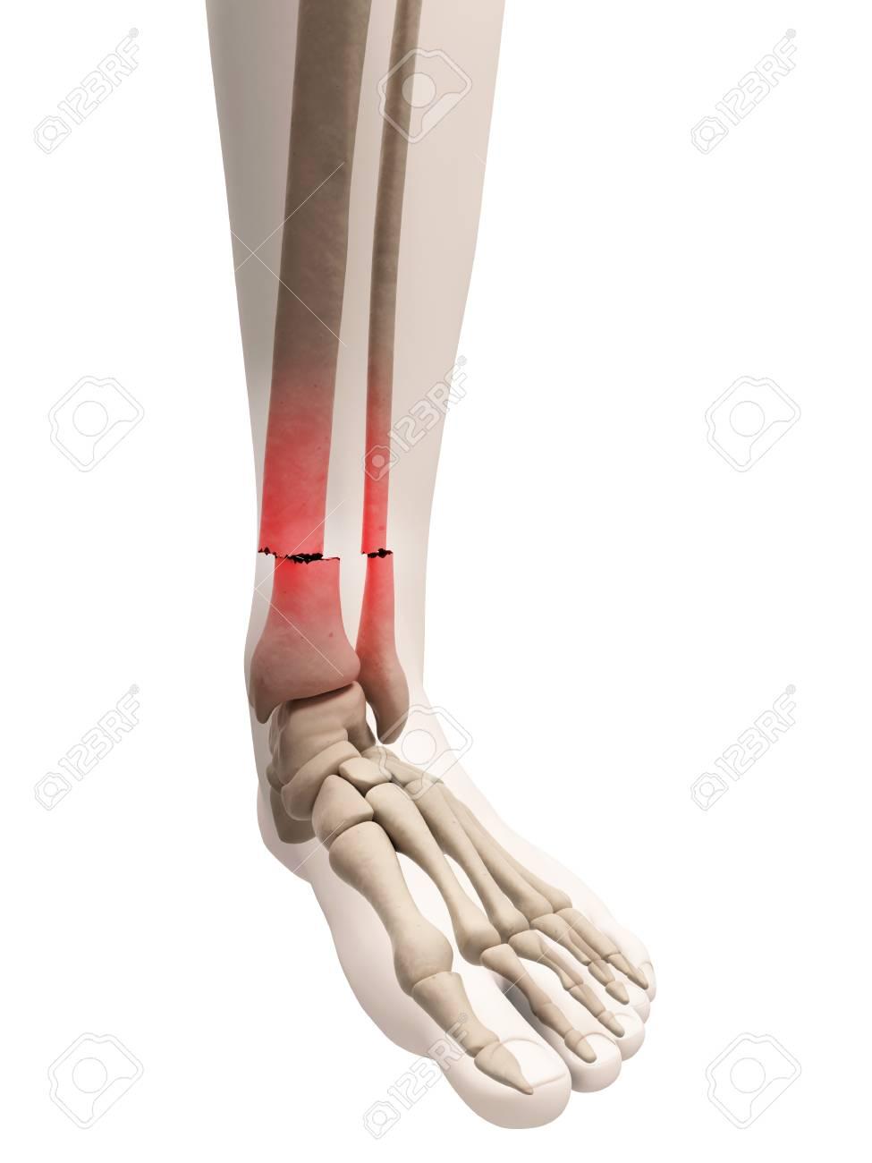 Broken Lower Leg Bones Illustration Stock Photo Picture And