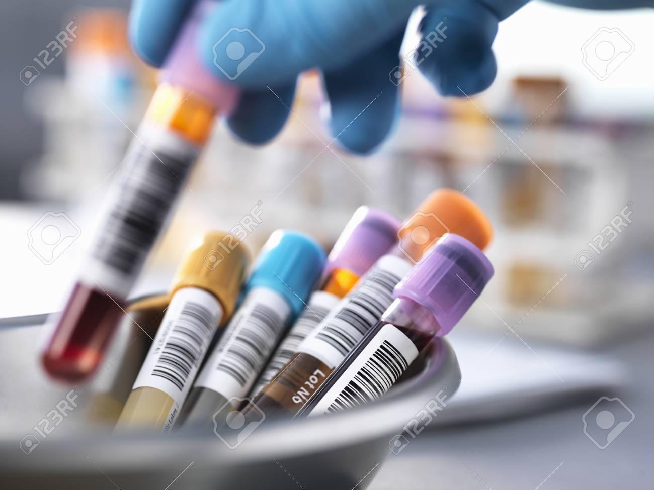 free tester samples