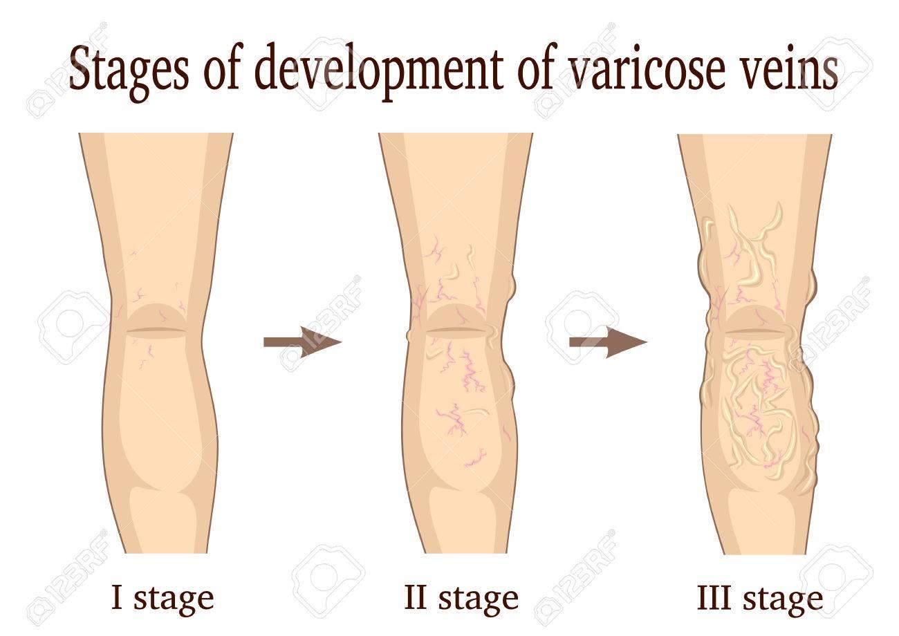 cauza și tratamentul varicozei
