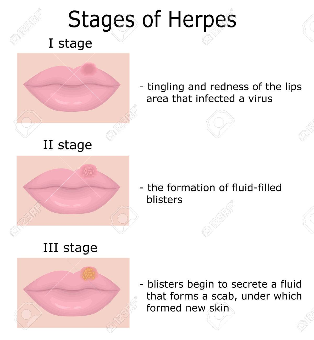 Stages of Herpes on the lips with a description of the disease - 68568205