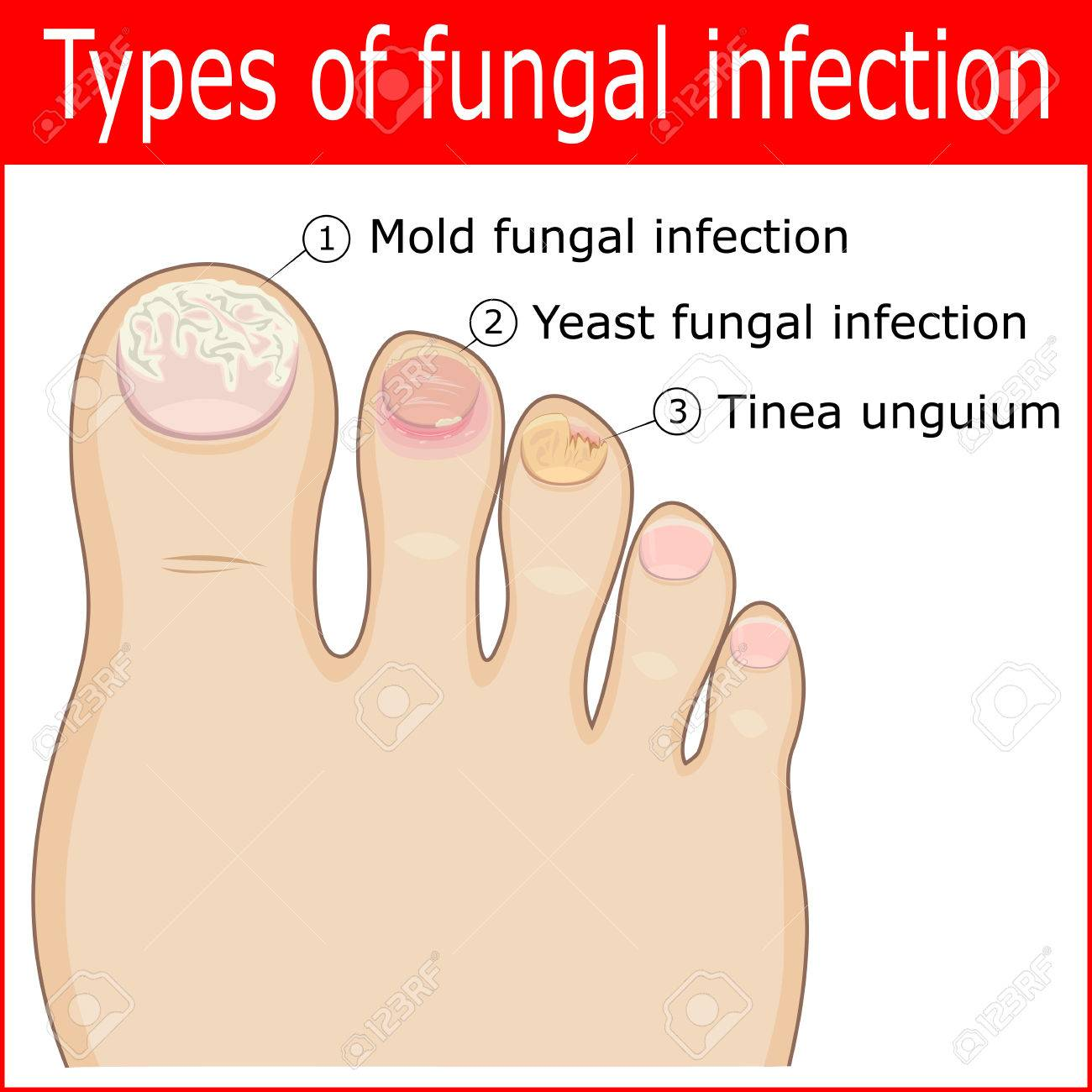 Types Of Fungal Infections In The Nails Of The Toes Royalty Free ...
