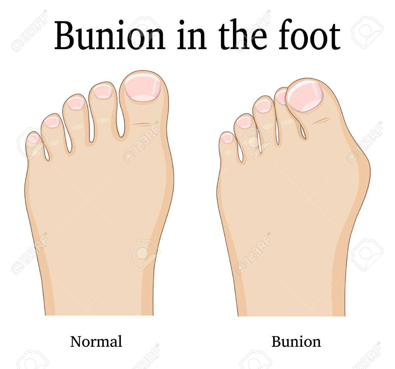 Comparison of a healthy foot and foot with hallux valgus deformity (Bunion). - 74633532