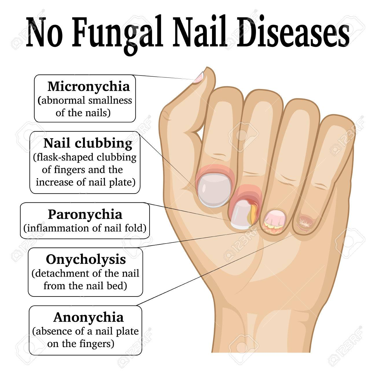 Illustration Of Five Different Non Fungal Nail Diseases Royalty Free ...