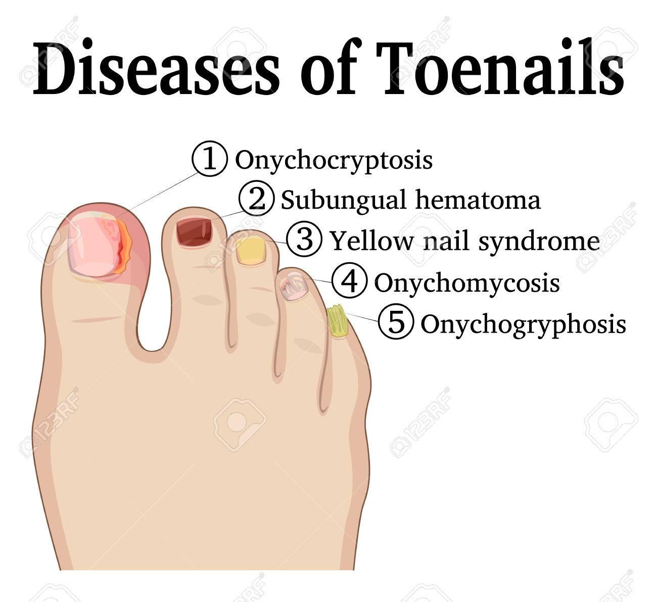 enfermedades de las unas de los pies