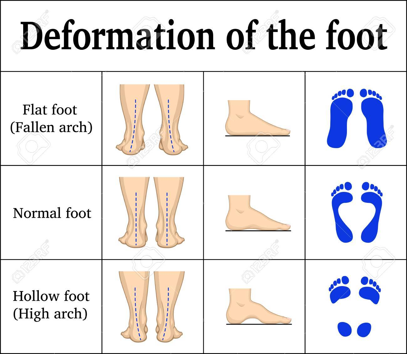 Illustration of the deformation of the foot. - 88937275