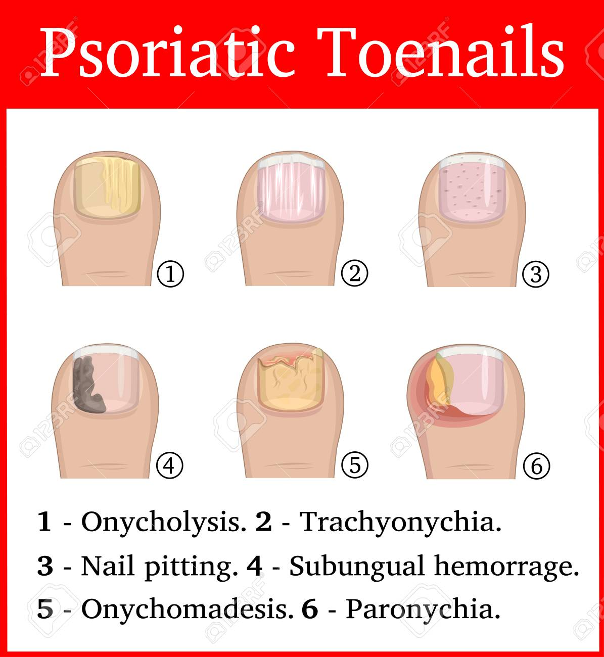 Illustration Of Six Kinds Of Psoriatic Tonails, Such As Nail ...