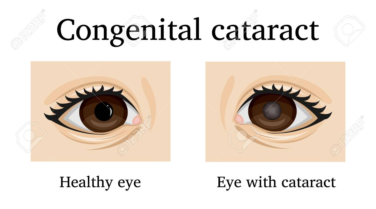 Illustration of Congenital cataract in an infant - 90691809