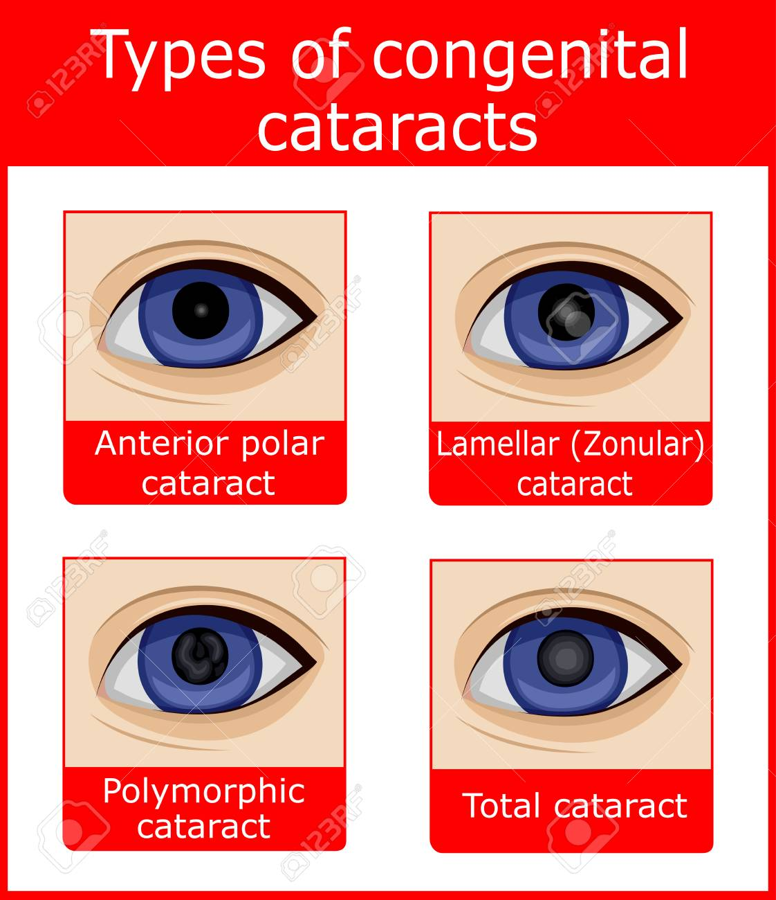 Four Types Of Congenital Cataracts Such As Anterior Polar Lamellar